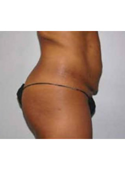 Tummy Tuck Case 15