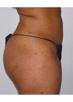Liposuction – Case 4
