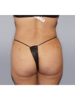 Liposuction – Case 7