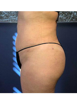 Brazilian Butt Lift – Case 4