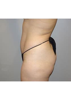 Brazilian Butt Lift & Tummy Tuck – Case 2