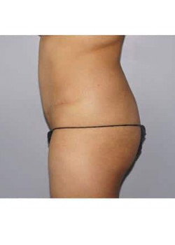 Brazilian Butt Lift & Tummy Tuck – Case 8