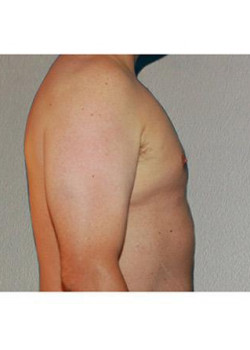 Male Liposuction – Case 2