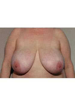 Breast Reduction – Case 6