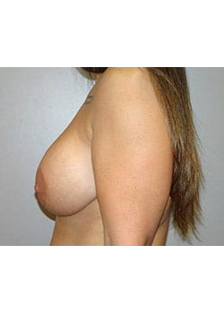 Breast Augmentation with Lift – Case 3