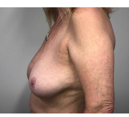 Mastopexy augmentation with fat